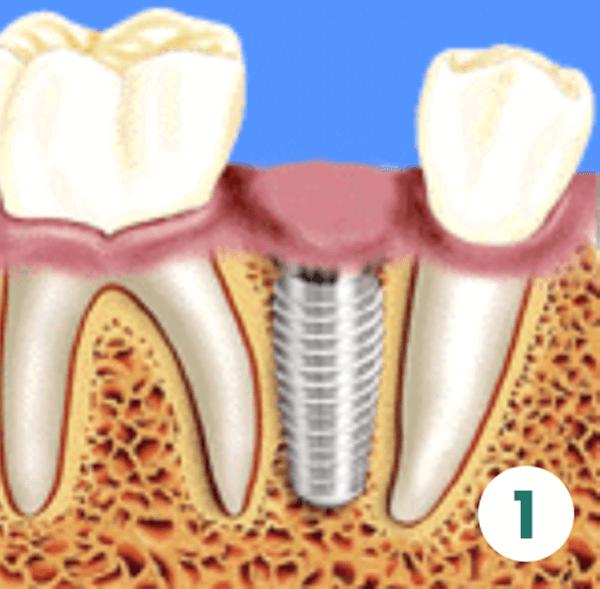 Prosthetic Phase Teeth