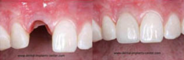 Dental Implants Patient Single tooth replacement