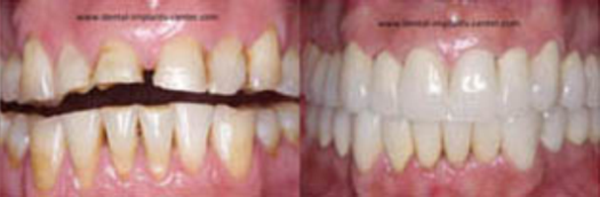 Dental Implants Patient Full mouth reconstruction