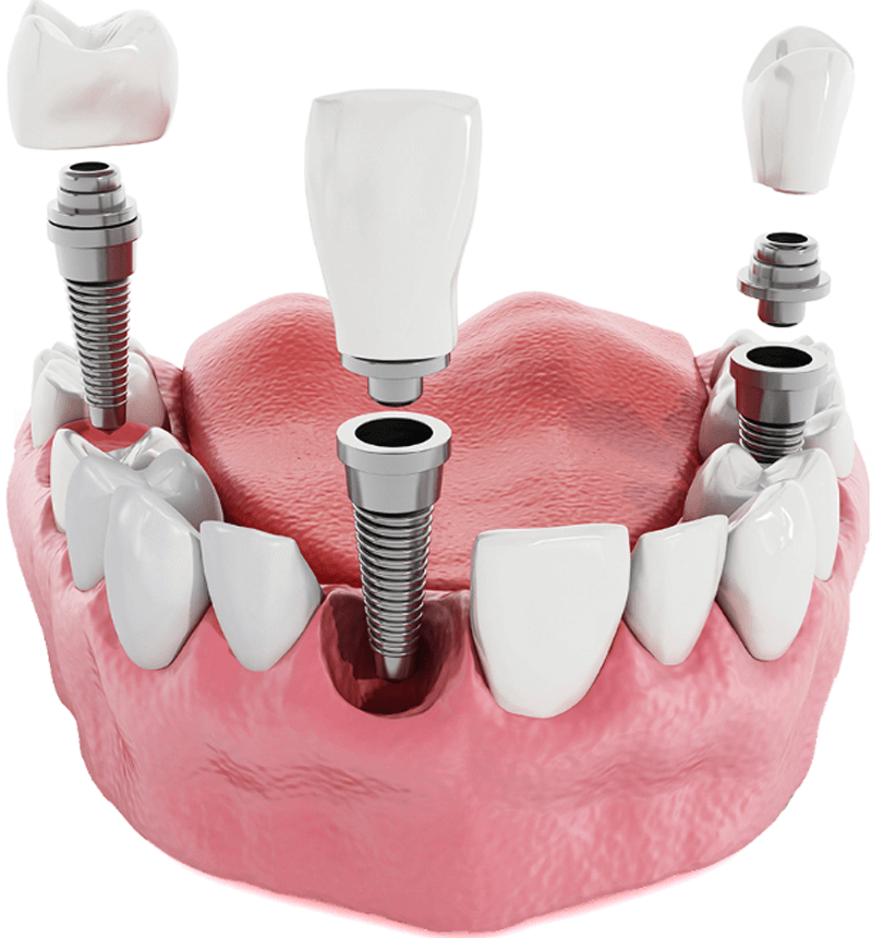 Dental Implants Center Tijuana